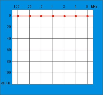 Audiogram goedhorende