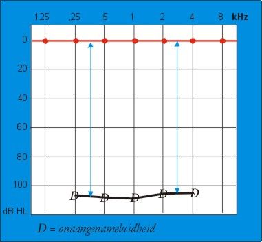 Audiogram onaangename luidheid