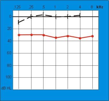 Audiogram met lucht en beengeleiding