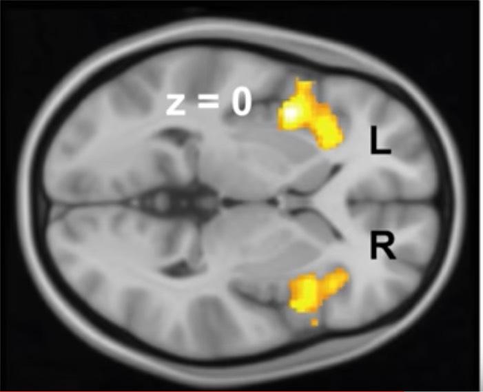 MRI misofonie verandering in de hersenen