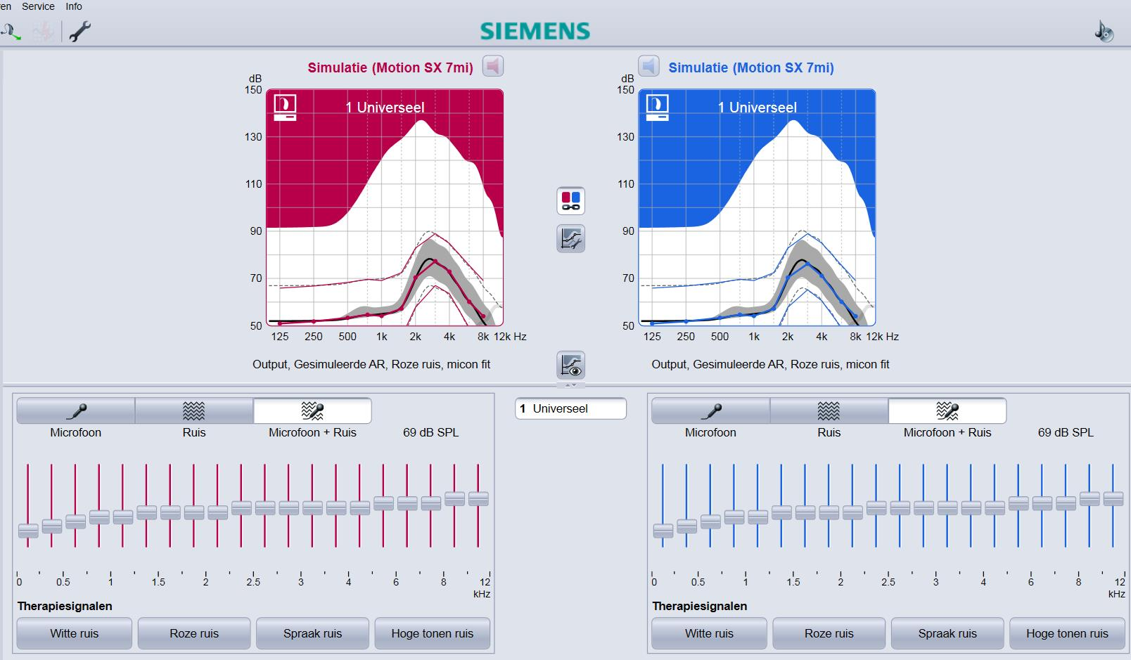 Siemens instellingen tinnitus hoortoestellen