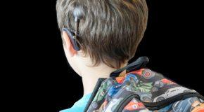 Cochleair implantaat biedt voordelen bij kinderen met eenzijdige doofheid