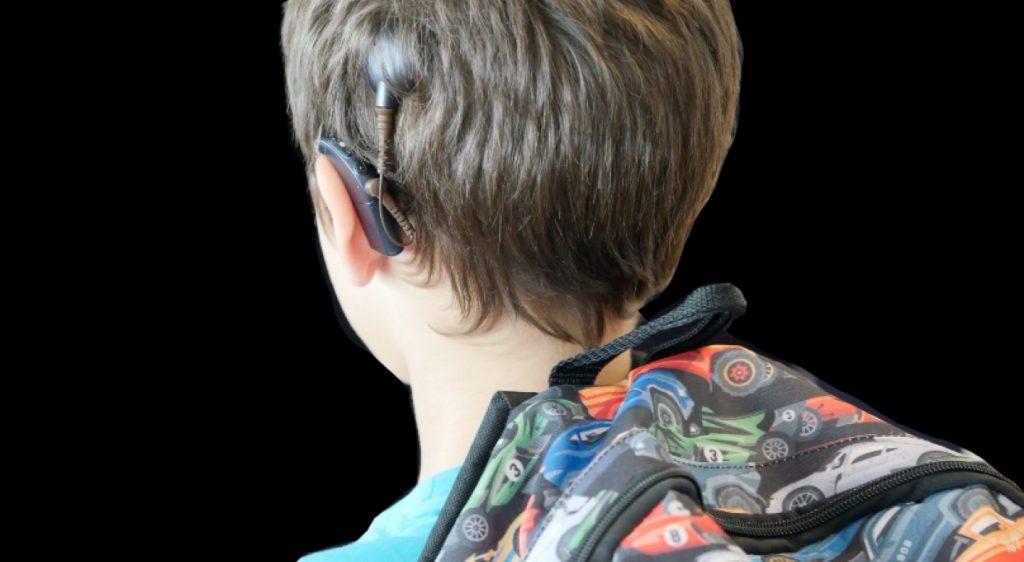 cochleair-implantaat-kinderen-eenzijdige doofheid