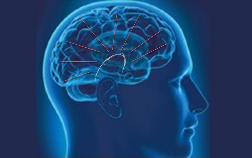 cochleair implantaat meet hersengolven eeg