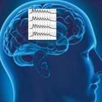 elektrische stimulatie hersenen beïnvloedt verstaan spraak