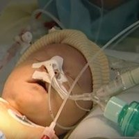 hartoperatie zuigeling slechthorendheid kinderen