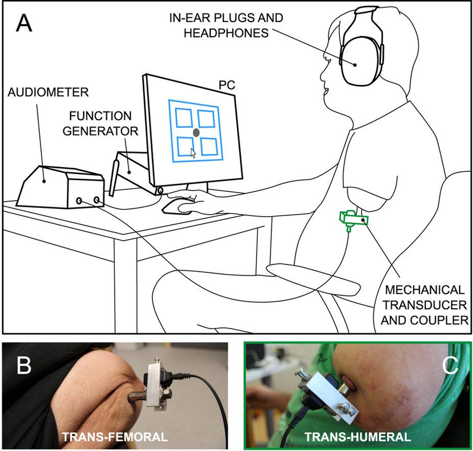 osseoperceptie met prothesen