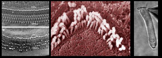 slakkenhuis-haarcellen