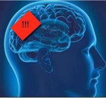 hersenen tinnituspaitenten niet in rust