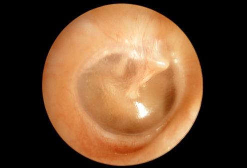 Gezond trommelvlies van het oor