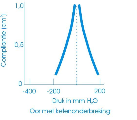 tympanogram ketenonderbreking