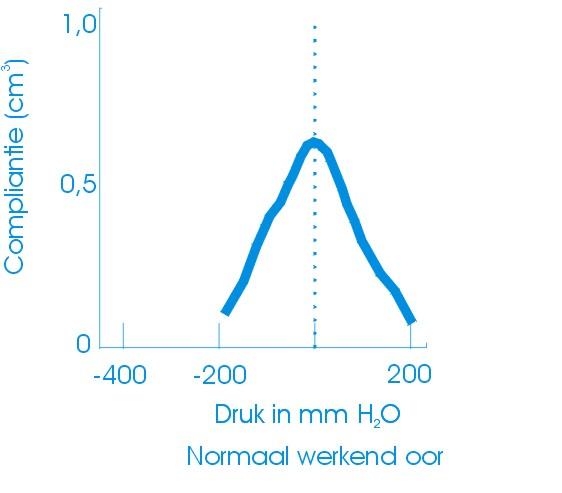 Tympanogram normaal