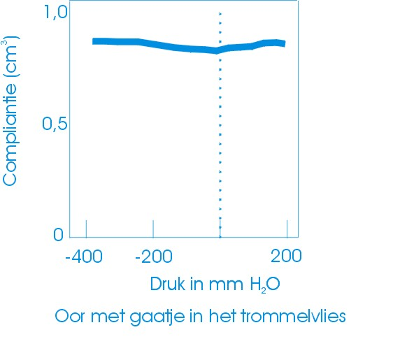 Tympanogram perforatie