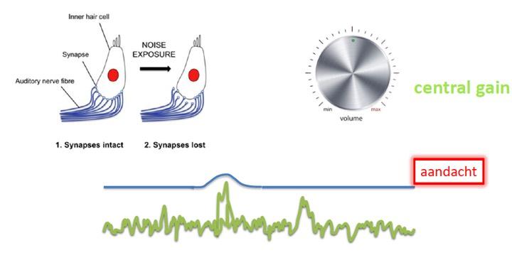 verlies synapsen gehoororgaan
