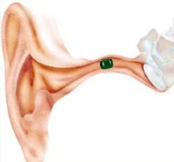 Vreemd voorwerp in het oor