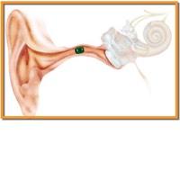 vreemde voorwerpen oor